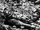 Dead French soldier missing legs, Verdun.